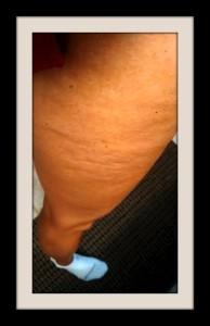 Cellulite Leg