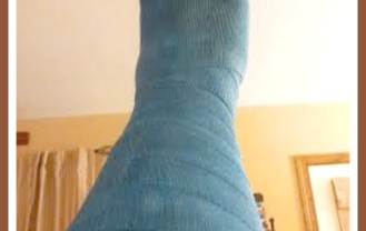 Ten Tips For The Woman In The Leg Cast