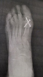Screws in foot
